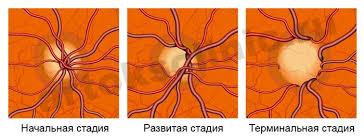 Картинки по запросу глаукома фотографии