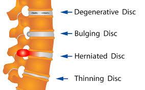 Image result for degenerative disc disease