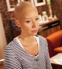 Isabell Hertel trägt in der Rolle eine Glatze. Bildquelle: RTL / Timo M. Seidel - isabell-hertel-mit-glatze
