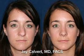 plastic surgery and botched dr jay calvert dr jay calvert