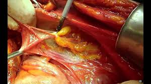 Image result for uterus            cancer       surgery