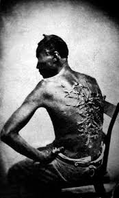origins of the american civil war violent repression of slaves was a common theme in abolitionist literature in the north above this famous 1863 photo of a slave gordon deeply scarred
