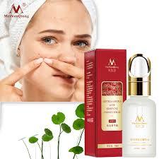 <b>Acne Pimple</b> Face <b>Skin</b> Care <b>Treatment</b> - <b>BREYLEE</b> Face Cream ...