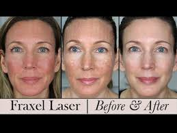 Fraxel Face Laser ~ Before & After! 3 Month Update - YouTube