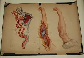 teaching watercolor of aneurysm in arm after charles bell s 21142 305 v2 jpg