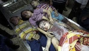 Image result for حمله عربستان به یمن کشتار کودکان