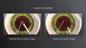 Image result for femto cataract catalyst machine picture