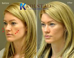 best images about plastic fat transfer plastic please view a small sample of dr kolstad s before after gallery all of the patients found in these galleries have agreed to allow their photographs