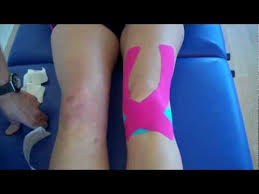 How to apply <b>Kinesiology Taping</b> for Knee Pain - Patella tendonitis ...