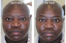 before after photos of microart semi permanent makeup for men