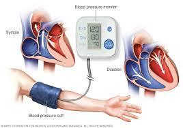 High <b>blood pressure</b> (<b>hypertension</b>) - Diagnosis and treatment ...