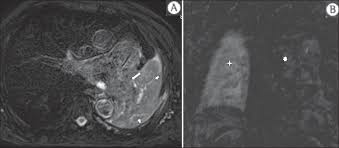 magnetic resonance imaging of the chest in the evaluation of figure 4 male 75 year old patient chronic obstructive pulmonary disease and previous history of lung cancer resection for two years