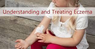 <b>Treating Eczema</b> in Toddlers & <b>Infants</b> | Ask Dr. Sears