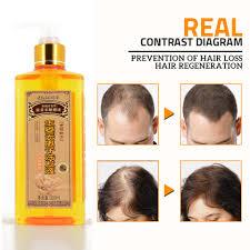 Genuine <b>Professional Hair ginger</b> Shampoo 300ml, Hair regrowth ...