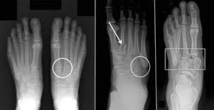 Lisfranc (Midfoot) Injury - OrthoInfo - AAOS