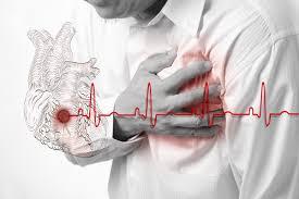 Resultado de imagem para imagem de infarto