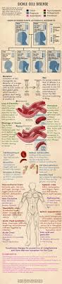 best images about nursing school nursing sickle cell disease after seeing a few cases of true sickle cell crisis good