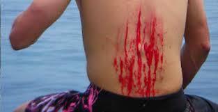 Травмы в <b>серфинге</b>: какие бывают и как избежать - WAVEHOUSE
