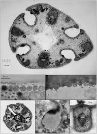 Leaf cytology of Romulea rollii showing an entire cross section (top ...