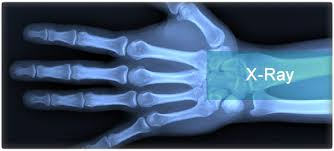 Image result for x-ray