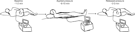 pressure injury prediction using diffusely scattered light the three stages of the measurement protocol the patient begins in the lateral position during