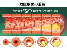 「動脈硬化」の画像検索結果