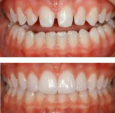 Resultado de imagen de carillas dentales