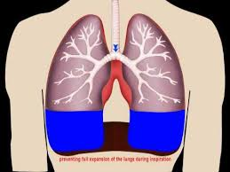 Image result for free picture of animated lungs