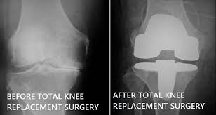 Image result for knee replacement before and after