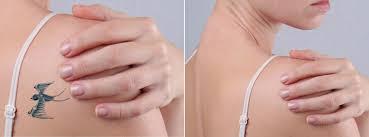 tattoo removal san francisco plastic surgery laser center dr sf plastic surgery tatoo removal jpg