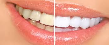 Teeth whitening congleton