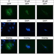 Identification and characterization of deschloro-chlorothricin ...