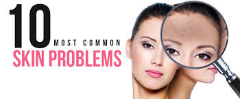 Image result for skin problems