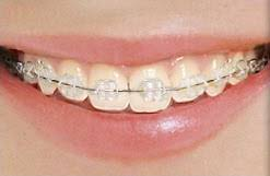 Image of Clear Braces on Person's Teeth