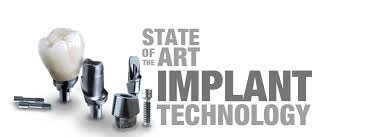 Image result for implants
