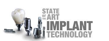 Image result for implants