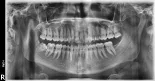 Image result for xrays