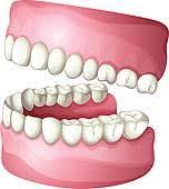 Znalezione obrazy dla zapytania protetic stomatology clipart