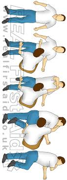 casualty positioning real first aid safe airway position