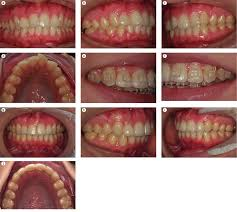 <b>Inter-proximal enamel</b> reduction in contemporary <b>orthodontics</b>