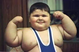 Image result for OBESITY IN CHILDREN