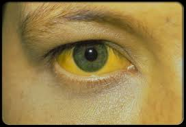 Image result for hepatitis