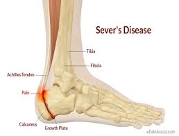 Image result for heel injury and pain
