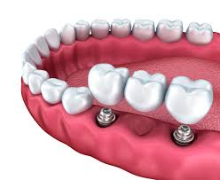 Image result for implant retained bridge