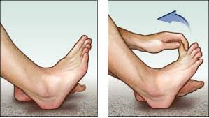treatment for plantar fasciitis symptoms