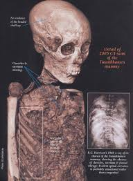 the death of tutankhamun accident disease or murder ancient ct scan showing missing sternum and ribs as well as other damage adapted from