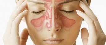 Cara Mengobati Sinusitis / Pilek ( Flu ) Secara Alami