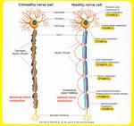 polyneuritis