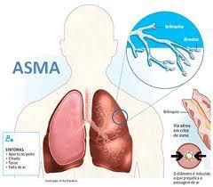 Cara Cepat Mengobati Penyakit Asma Secara Alami