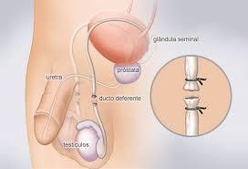 Resultado de imagem para imagem vasectomia